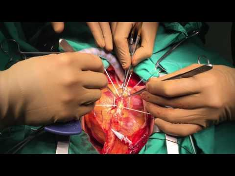 LİMA to LAD Coronary Artery Bypass under Beating Heart (off-pump)