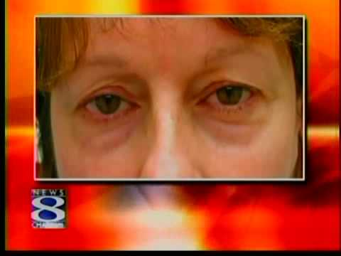 Eyelid Lift Guilford | Blepharoplasty Connecticut | The
