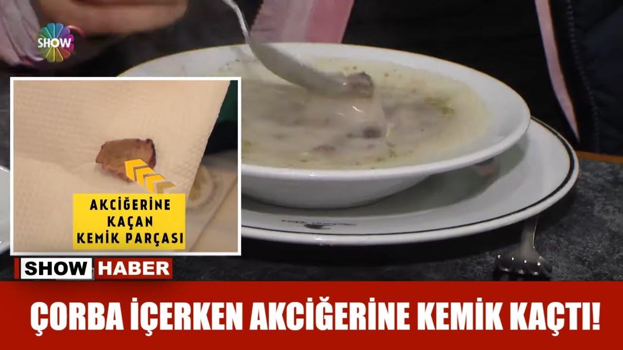 Çorba içerken akciğerine kemik kaçtı!
