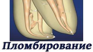 Эндодонтия. Абтурация корневых каналов. Основы стоматологии.