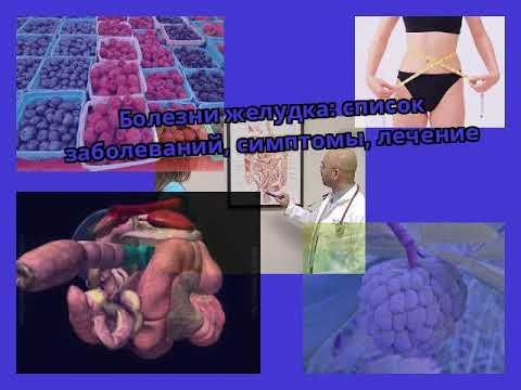 Болезни желудка: список заболеваний, симптомы, лечение