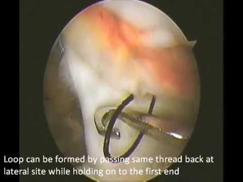 Total Arthroscopic retinaculum repair in traumatic dislocation of ...
