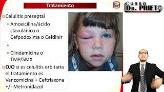 Causas celulitis periorbitaria