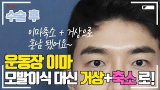 [4k]모발이식 대신 이마거상+축소로 환한 인상까지!!…