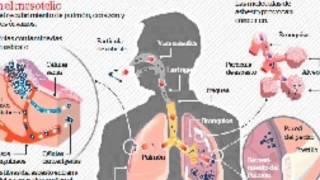 Asbesto, es la otra causa de la enfermedad de cáncer de pulmón