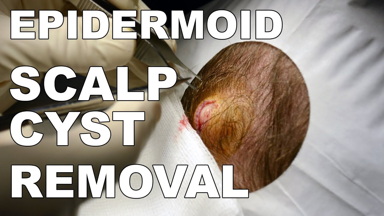 Epidermoid Cyst (Scalp) Removal - Dr  Paul Ruff | West End Plastic Surgery