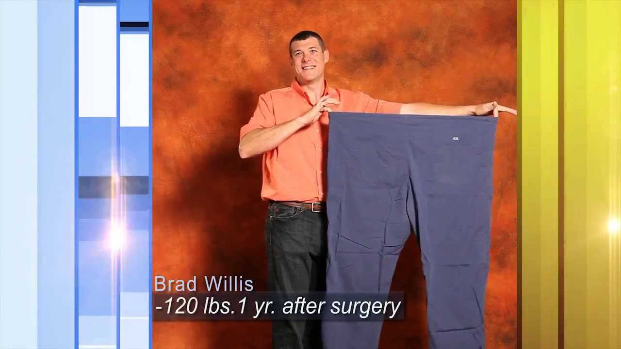 Weight Loss Surgery Houston Weight Loss Surgeon  Youtube. Small Business Sms Marketing. Server Data Encryption Social Science College. Nyu Stern Mba Class Profile Mort Sahl Quotes. Best Certificate Of Deposit Rates. Freedom Debt Management Archstone Nyc Rentals. Top Computer Science Undergraduate. Get Financing With Bad Credit. Rental Cars In Queenstown Donate A Car In Nyc
