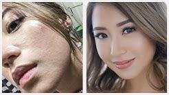 Sudden Sandy Skin Texture- Remedy | Kryz Uy