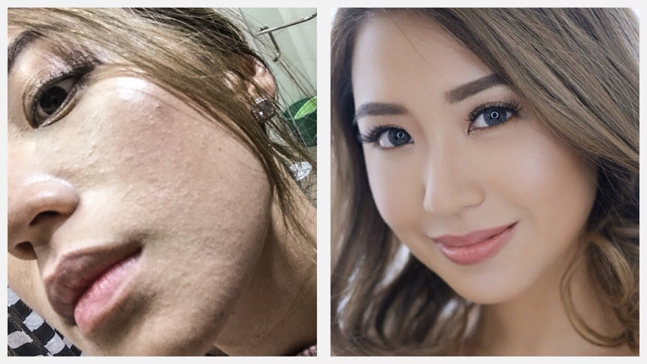 Sudden Sandy Skin Texture- Remedy  Kryz Uy