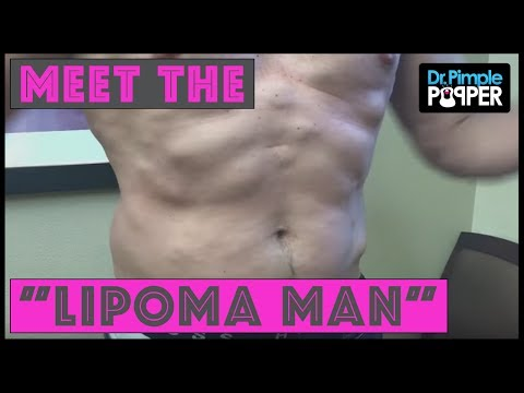 Let me Introduce you to... Lipoma Man!