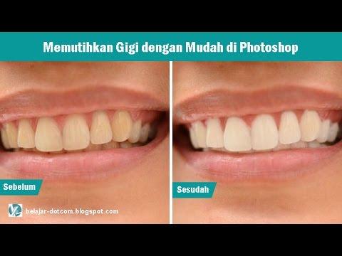 Cara Memutihkan Gigi Dengan Cepat Di Photoshop Youtube
