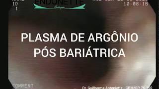 Plasma de Argônio pós cirurgia bariátrica bypass gástrico