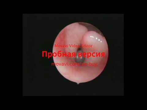2 Коллапс гортани и медиальнонаправленное сближение рогов черпаловидных хрящей