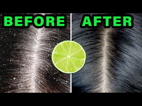 Remove dandruff naturally using lemon juice | Haircare