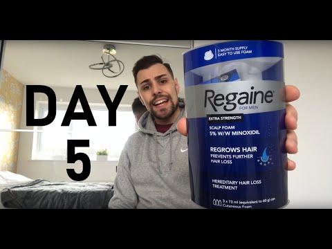 minoxidil-5%-regaine-on-beard:-day-5