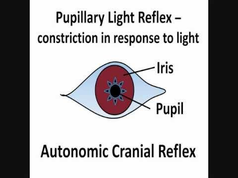 Pupillary Light Reflex - Cranial Nerves II & III