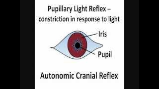 Pupillary Light Reflex - Cranial Nerves II & III
