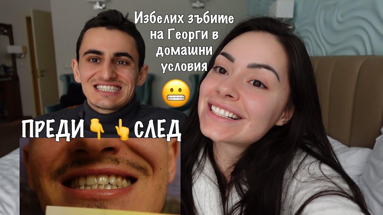 Чисто бели зъби за 5 дни!