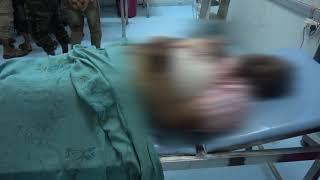 استشهاد 4 من اسرة واحده بينهم مولودة لايتجاوز عمرها اسبوع وامها بعبوة حوثية بالحديدة
