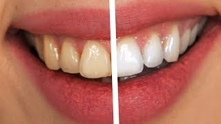 Quick Teeth Whitening Photoshop 免费在线视频最佳电影电视节目