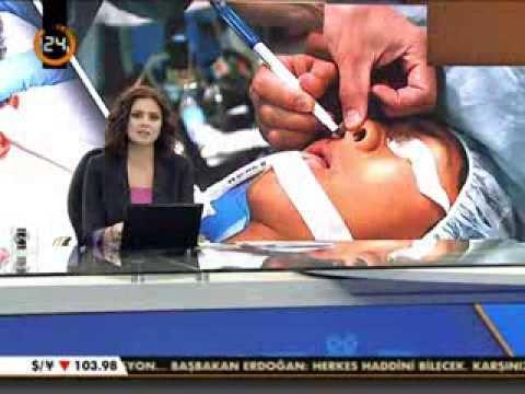 Doç.Dr.Hayati Akbaş-Burun Estetiği-kanal 24 haber bülteni