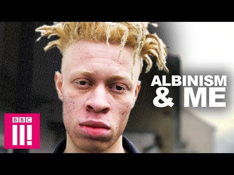 Why I'm Proud of My Albinism | Living Differently
