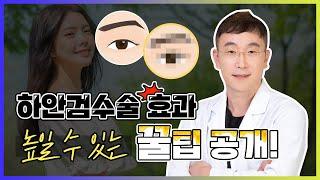 #하안검 수술만 해도 될까? #하안검수술 과 함께하면 …