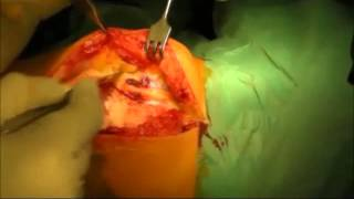Смотреть видео эндоротезирование коленного сустава