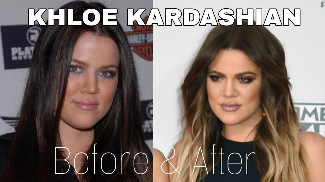KHLOE KARDASHIAN - BEFORE and AFTER surgery - YouTube