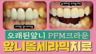 묶여있는 앞니 PFM크라운 잇몸염증/보철물제거 및 치아…
