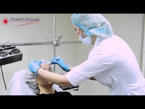 Инъекции Ботокса в Лазмед Клинике
