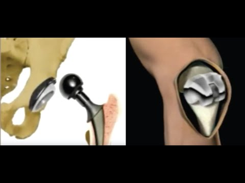 Provincial Hip and Knee Replacement Teaching Video