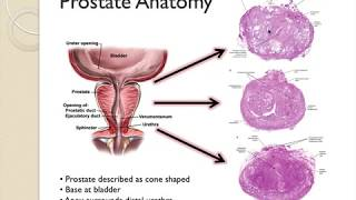 BPH is an extremely common disorder in men over age 50. It is characterized by hyperplasia of prosta.