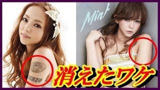 【真実】安室奈美恵 母親事件とタトゥーへの思い。タトゥーを消した理由に涙!【around 芸能】