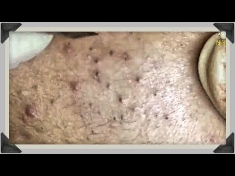 BLACKHEADS AND CYSTIC ACNE REMOVAL ON FACE - Pimples, Acne Treatment With Relaxing Music 190323!