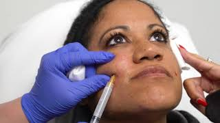 Sculptra Injections for Facial Sculpting | Collagen Stimulation | Dr. Jason Emer