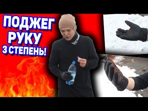 """""""ОБЛИЛ РУКУ СПИРТОМ И ОБЖЕГ, 3 СТЕПЕНЬ ОЖОГА!"""