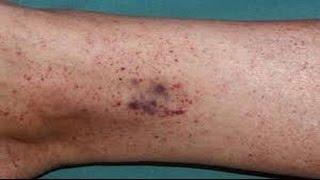 Con manchas pequeñas rojas piernas hinchadas