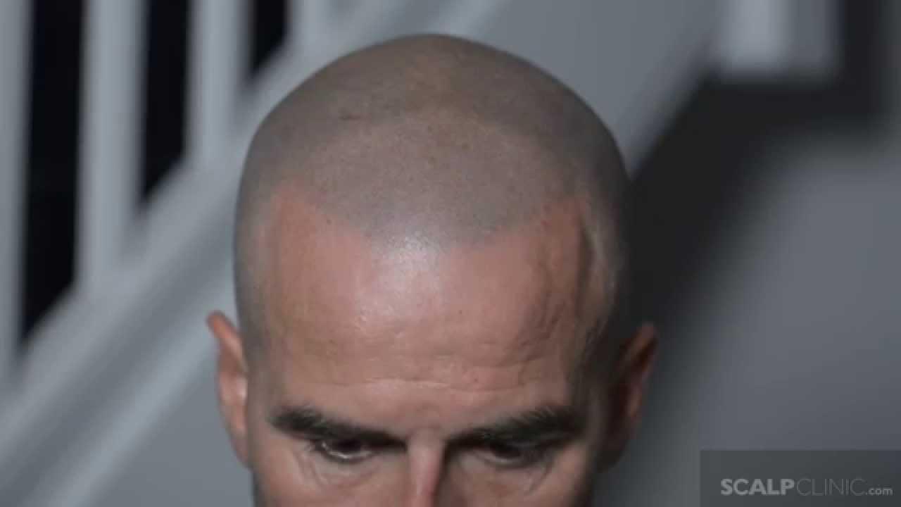 John sununu shaved head