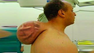 World's Largest Neck Cyst?  Full Case Study, Giant Tumors & Hibernoma