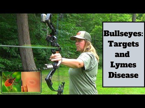 Bullseyes: Targets and Lymes Disease