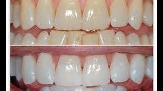Cómo blanquear tus dientes en 3 pasos con Anastassia Sfeir