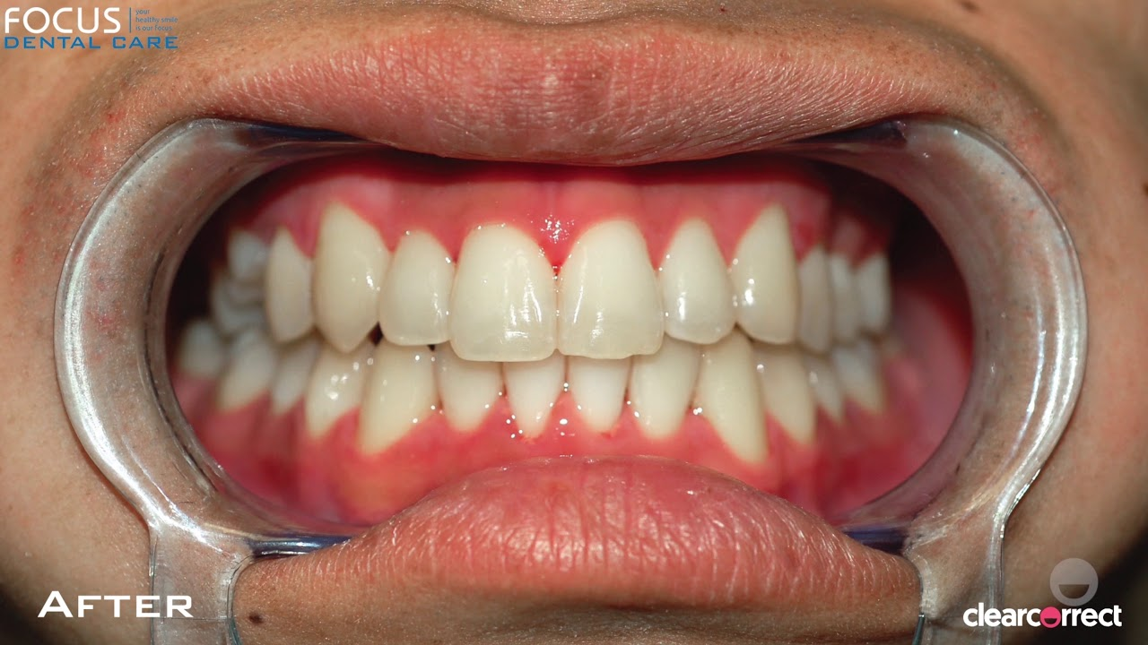 Invisible Braces in Hyderabad India | Before & After ...