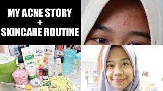 BRUNTUSAN HILANG CUMA PAKE SATU PRODUK?!! | MY ACNE STORY + SKINCARE ROUTINE