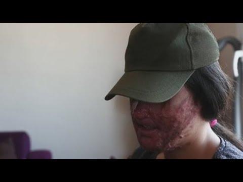 Un ataque con ácido en Turquía reabre o debate sobre a violencia machista