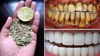 2 मिनट में गंदे-पीले दाँतो को दूध जैसा सफेद और मोतियों जैसा चमकदार बना देगा   teeth whitening remedy