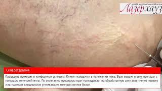 varicoză operațiunea krivoy rog