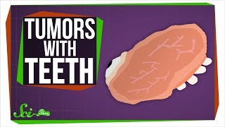 Teratomas: What Tumors with Teeth Can Teach Us About Stem Cells