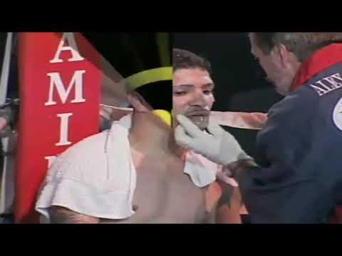 Darling Jimenez vs Isreal Coraliz
