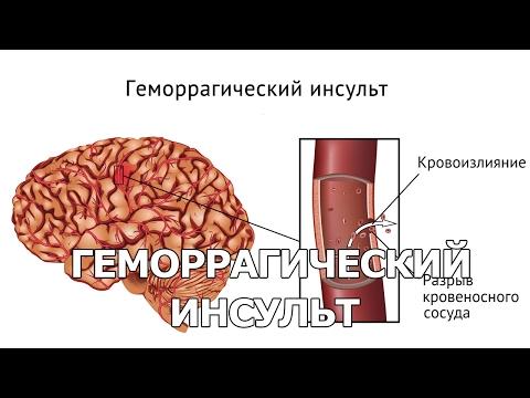 Геморрагический инсульт (кровоизлияние в мозг)